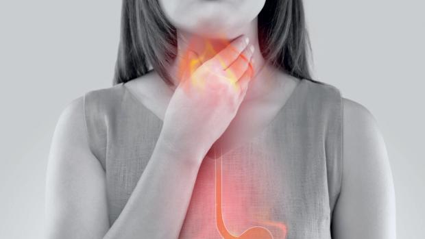 reflux gastro-œsophagien