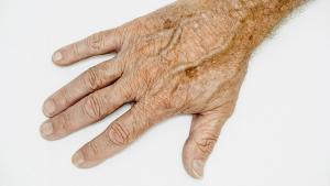 Les taches de vieillesse peuvent se gommer