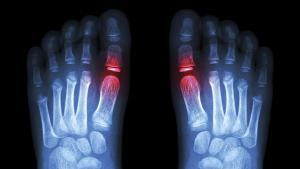 radiographie des pieds